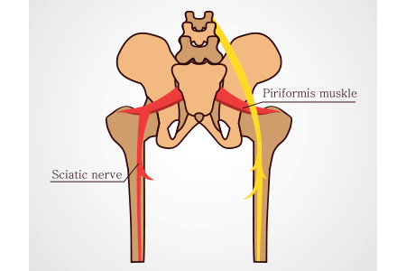 What is Sciatica and the Cause of Sciatic Nerve Pain?